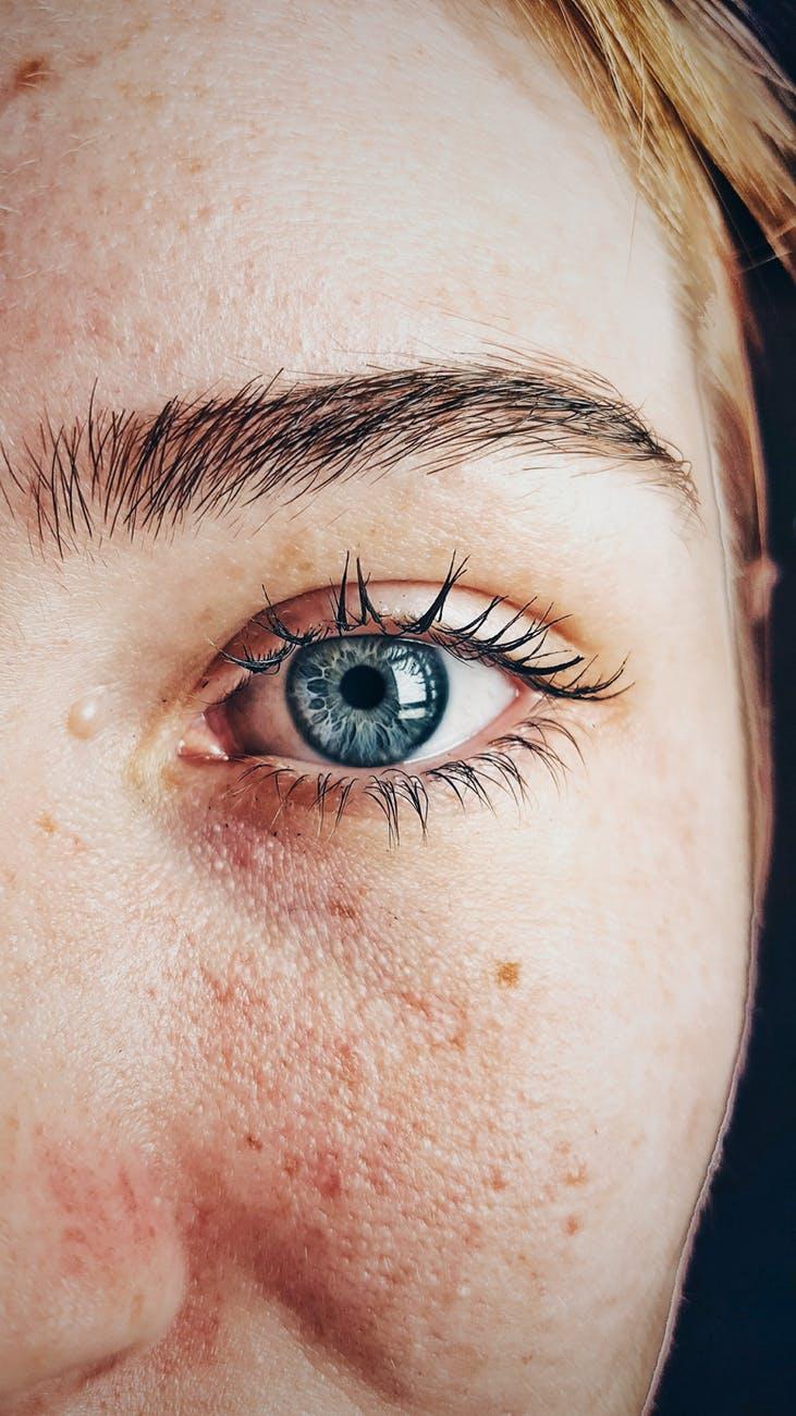 Traiter l'acné d'adulte naturellement